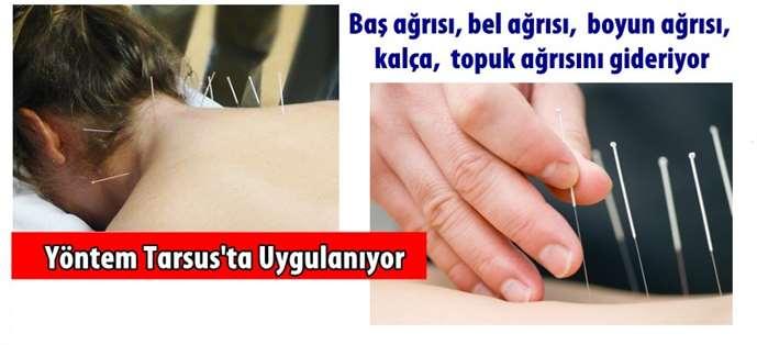 Tarsus'ta Kuru İğne (Intramüsküler Stimülasyon) Uygulaması