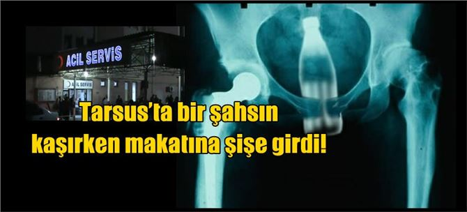 Tarsus'ta bir şahsın kaşırken makatına şişe girdi!