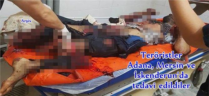 Teröristler; hazırladıkları bomba patlayınca yaralandılar