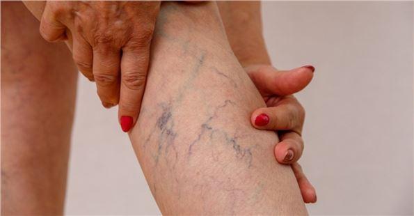 Bacaklarda geçmeyen ağrıların nedeni; Varis